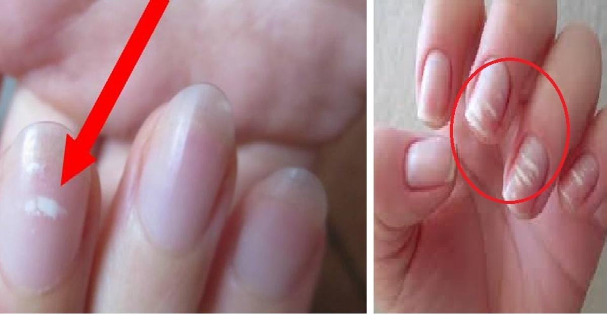 Que significan las manchas blancas en las unas de las manos
