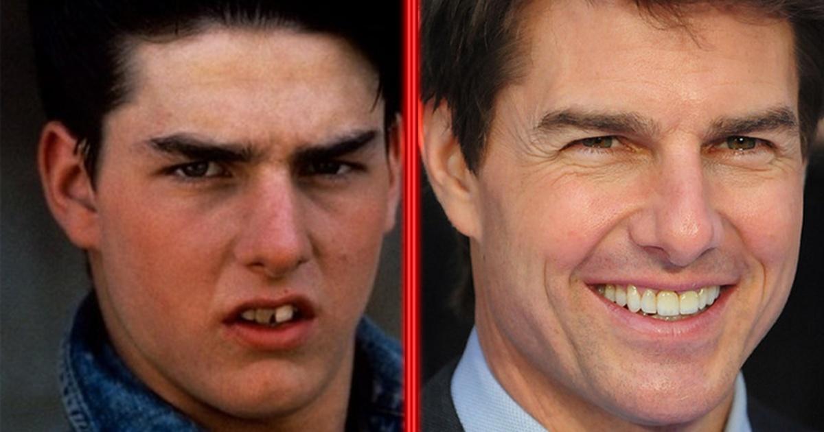 Estos famosos se arreglaron los dientes y parecen otras personas