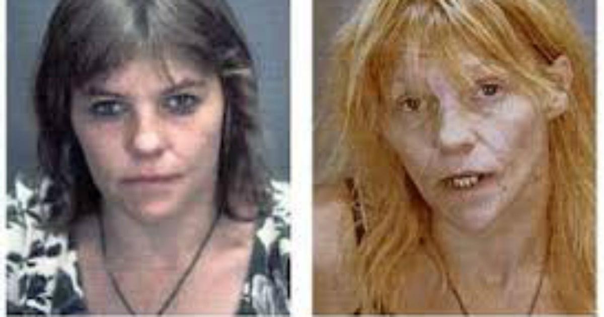 11 Terribles imágenes que muestran los resultados de consumir metanfetaminas. No todo es diversión
