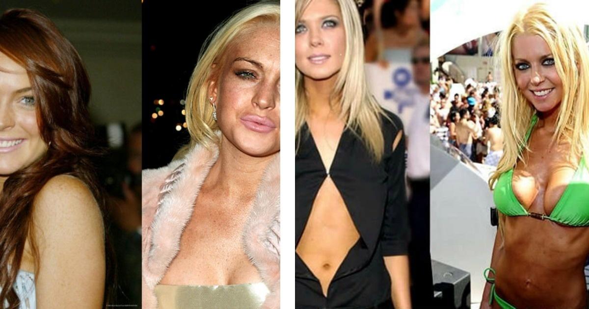 10 Famosos que debieron arrepentirse de sus cirugías plásticas