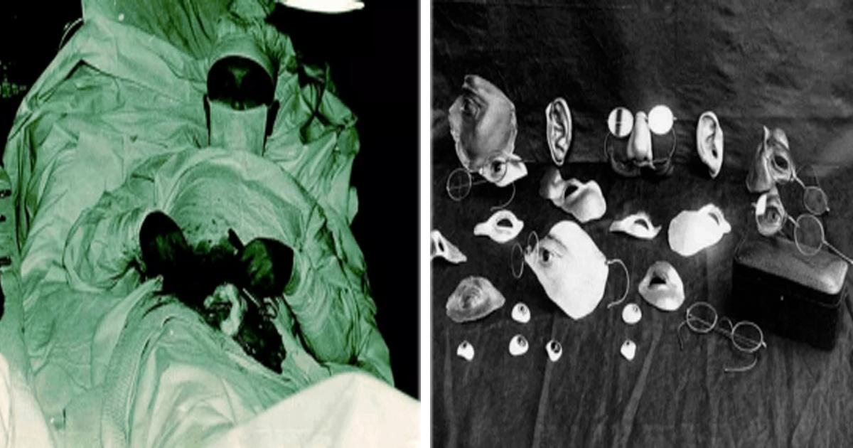 16 Imágenes de miedo que muestran cómo era la medicina hace muchos años.