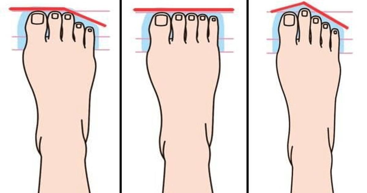 Existen 10 tipos de pies, ¿qué significa cada uno?