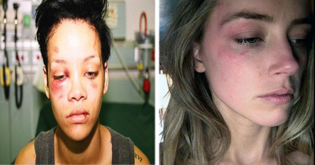 8 Celebridades que fueron víctimas de violencia por parte de sus parejas.