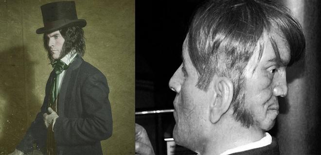 El escalofriante caso de Edward Mordrake, el hombre con dos rostros